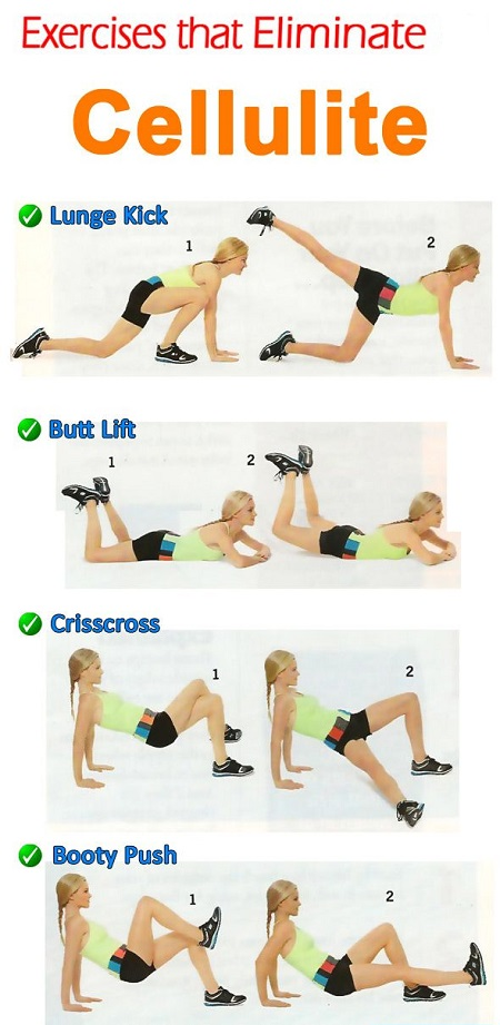 Cellulite Exercises | FitMC
